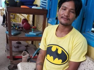 カンボジア・シェムリアップにあるフィジカル・リハビリテーション・センターで義足を取り換えに来ていたマー・シチャンさん。2番目の子どもとなる女児が最近生まれたと嬉しそうだ