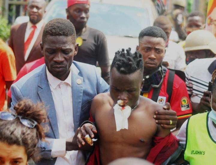 ゴム弾により負傷した友人の肩を抱えるボビ・ワイン(2020 Bobi Wine Facebookより)